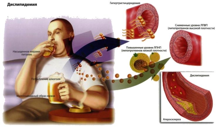 Процесс повышения холестерина в организме мужчины