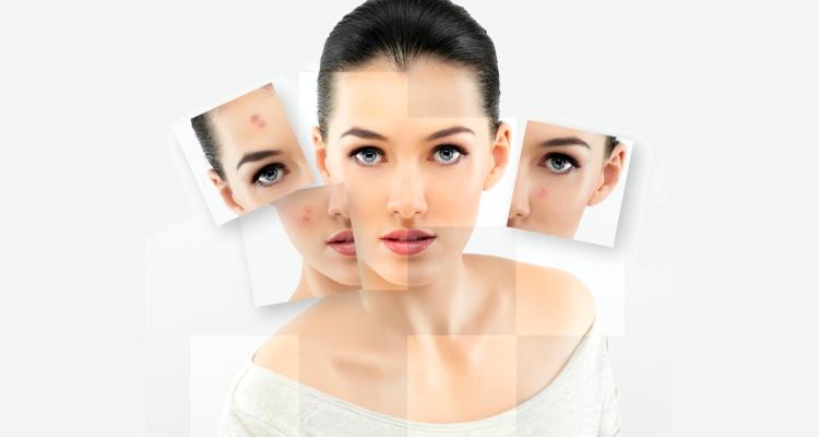 Питание продукты при угревой сыпи на лице