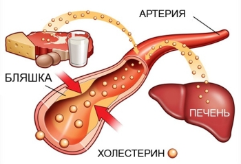 Источники холестерина в крови