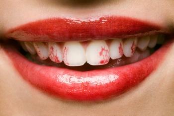Белая диета после отбеливания зубов: отказ от помады